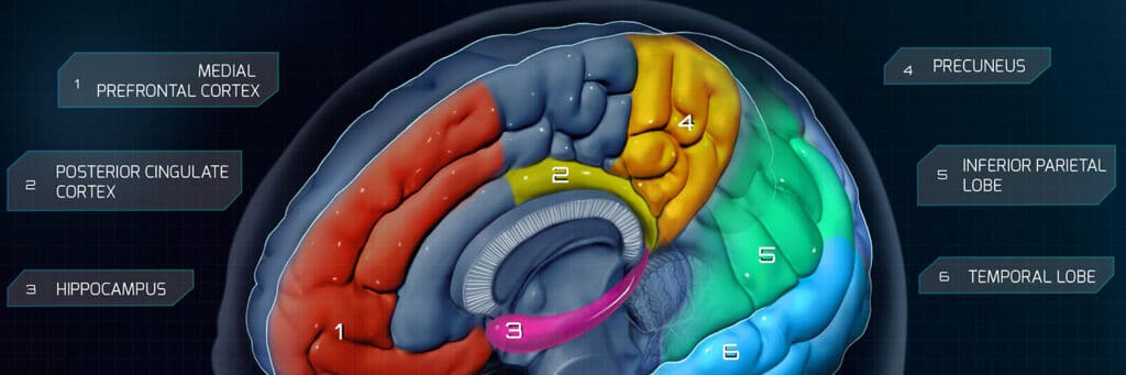 temporal lobe prefrontal cortex